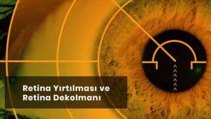 Retina Dekolmanı Tedavisi Mümkün müdür?